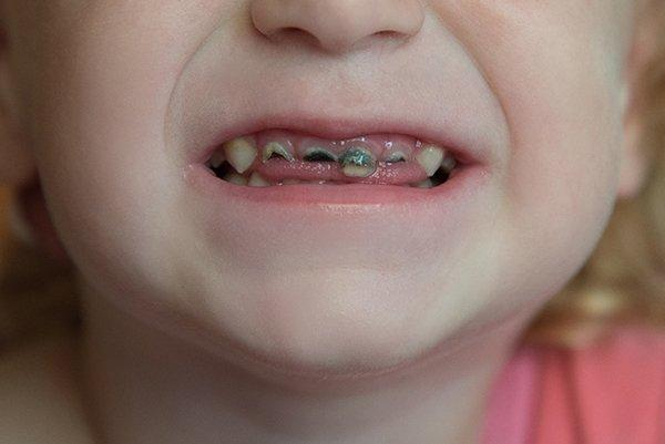 Baby tooth decay from baby bottle